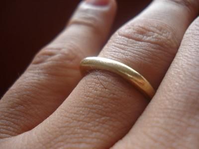 Горящее лицо и обручальное кольцо